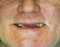 Before Occlusal Treatment Picture West Chester