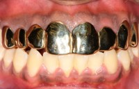 Teeth Jewelry
