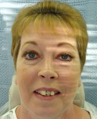 Porcelain Dental Reconstruction Before Picture