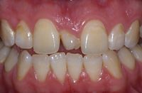 Cosmetic Ortho Before Photo